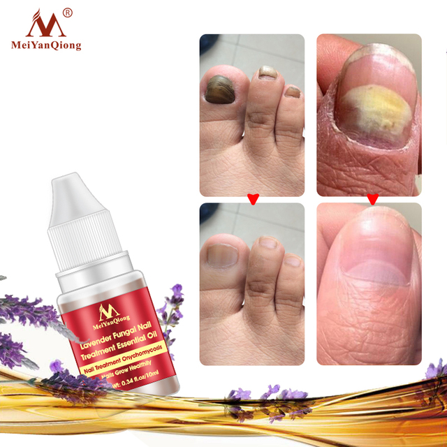 Lavender Fungal Nail Treatment Essential Oil Nail Art & Tools Promote Nails Grow Healthy Nail Treatment Onychomycosis Foot Care
