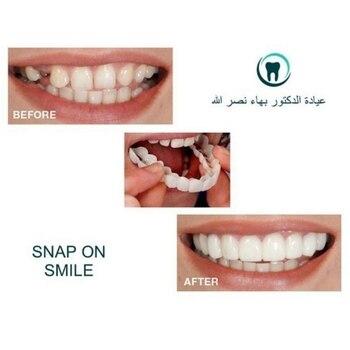 Dentadura para adulto reutilizable, perfecta sonrisa, blanqueadora, apta para dentaduras flexibles, productos para el cuidado bucal cómodos
