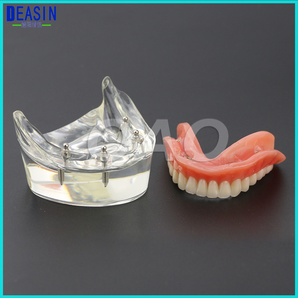 Dental Teaching Teeth Study Model Overdenture Inferior 4 Implant Demo Model soarday dental restoration model with 4 implants overdenture inferior teaching study teeth model