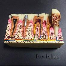 Tandheelkundige Anatomie Van Cariës Plastic Tanden Model Demonstratie Communicatie