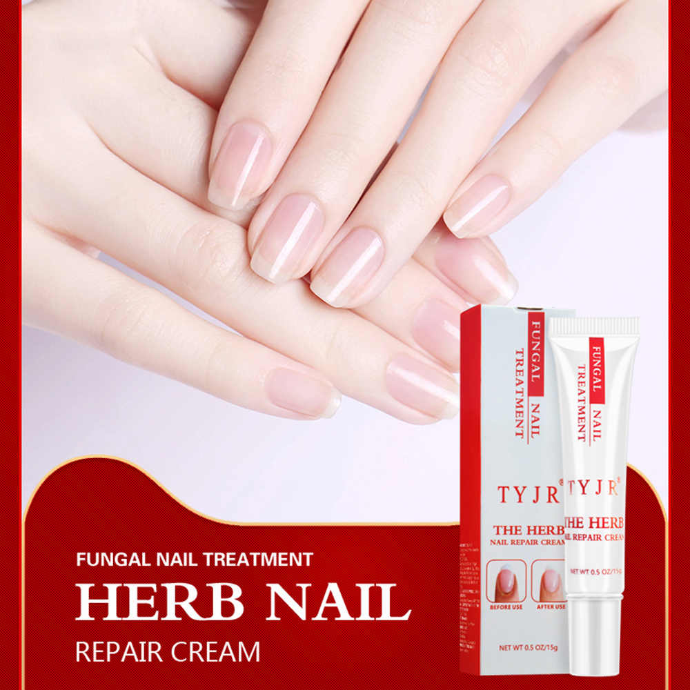 TYJR 15g Herbal Fungal Nail Treatment Herb Nail Repair Cream Toenail Fungus  Removal Feet Care Anti-Fungal Nail Repairing Gel