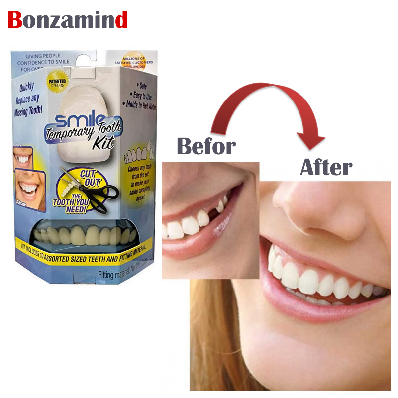 Gel Dental Veneers Moderate Perfect Smile Teeth Veneers Transparent Teeth Whitening Natural Color Veneers For Teeth
