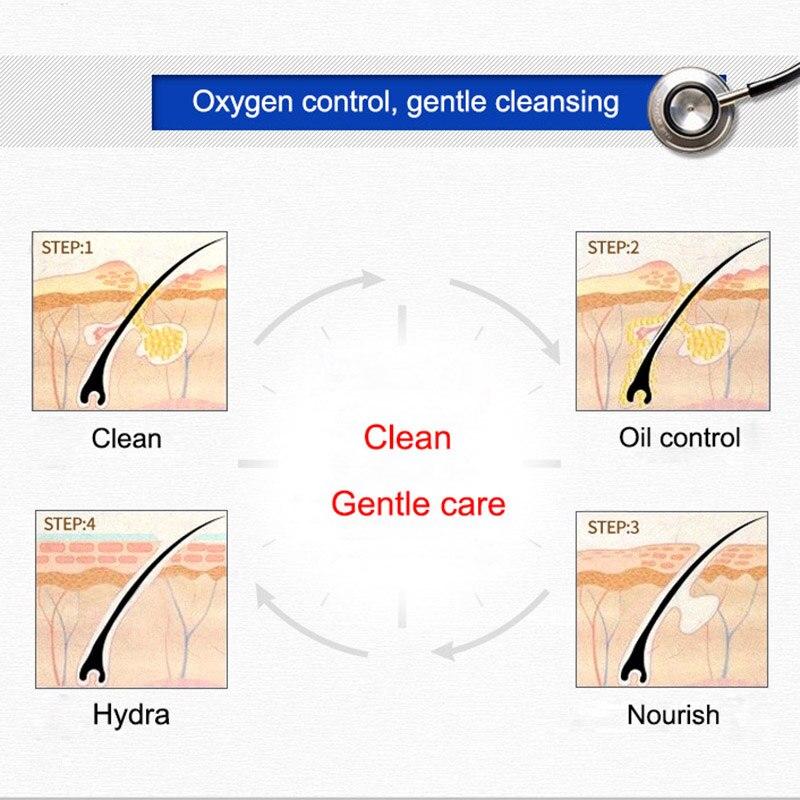 Acne Treatment Facial Cleanser Black Head Remove Oil-control Deep Cleansing Foam Shrink Pores WH998