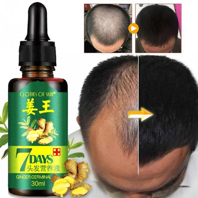 Hot Sales Unisex Anti Hair Loss Treatment Serum Ginger Extract Hair Regrowth Organic Beard Oil Growing Men Women Hair Care #719