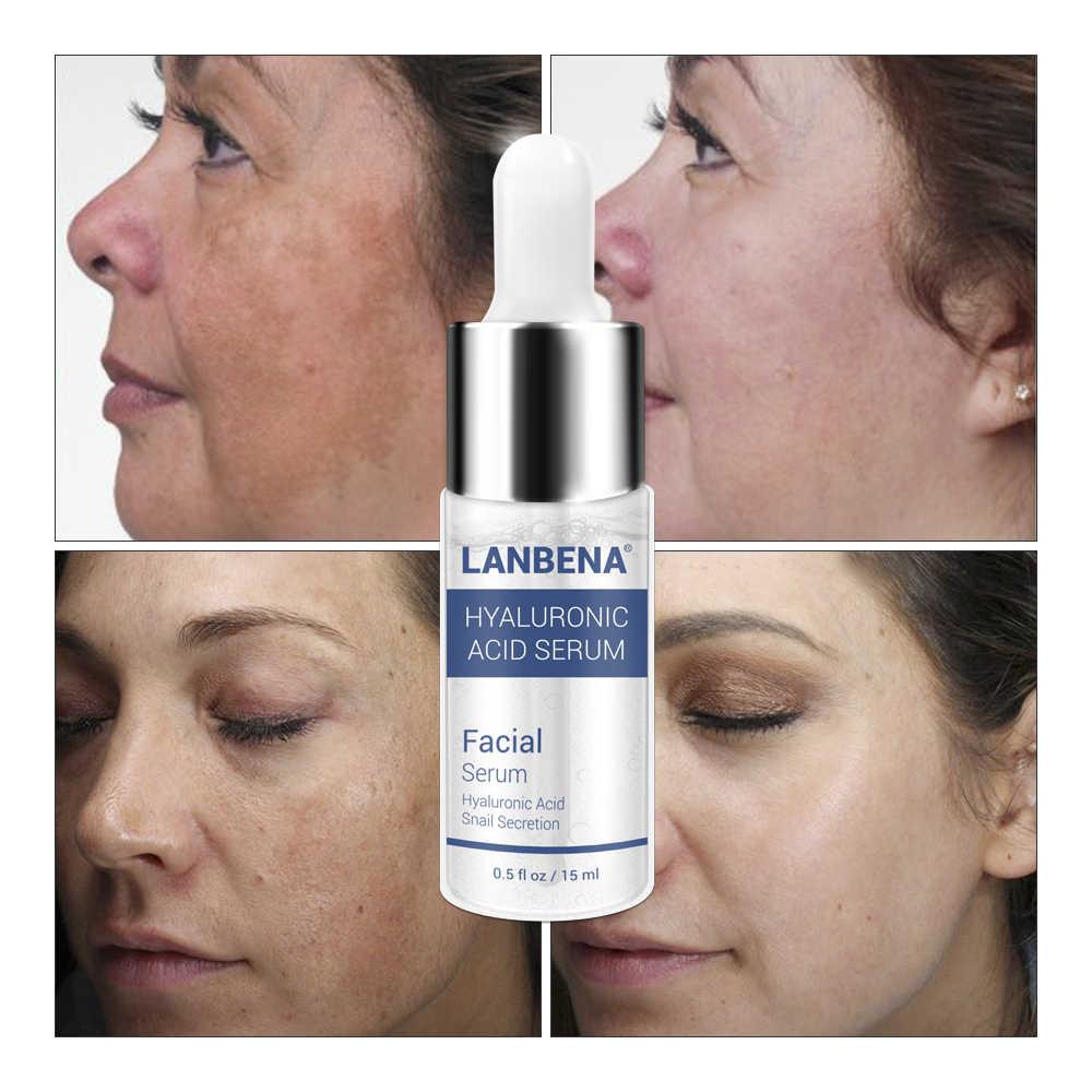 Suero de ácido hialurónico LANBENA, eliminador de espinillas, tratamiento de acné hidratante, reparación de cuidado de la piel, blanqueamiento, antienvejecimiento Winkles 15ml