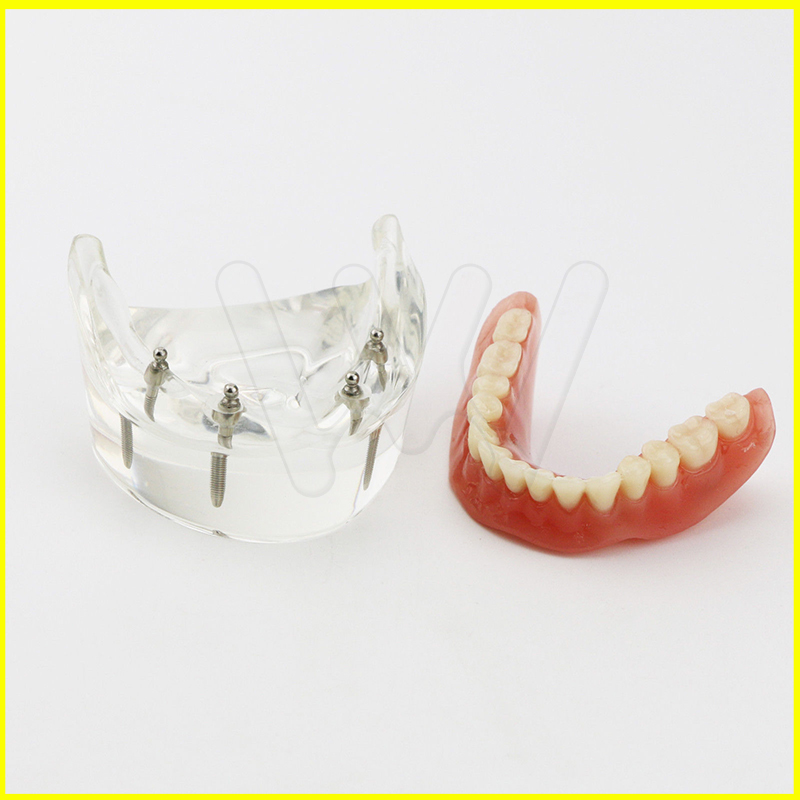 1 Pc modèle d'étude des dents dentaires Overdenture inférieure 4 modèle de démonstration d'implant