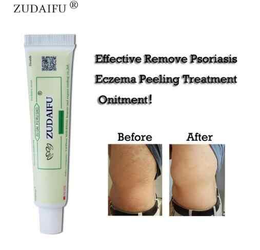 Zudaifu โรคผิวหนัง Eczematoid กลากครีม Treatment Psoriasis Cream Skin Care ครีม