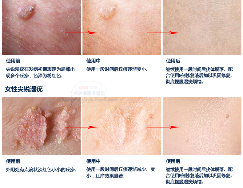 ФОТО 2016 Top Fashion Psoriasis Body Lotion Genitals Lotion Remove Rotting Aureus Herpes Condyloma For Leacom Optimal Warts