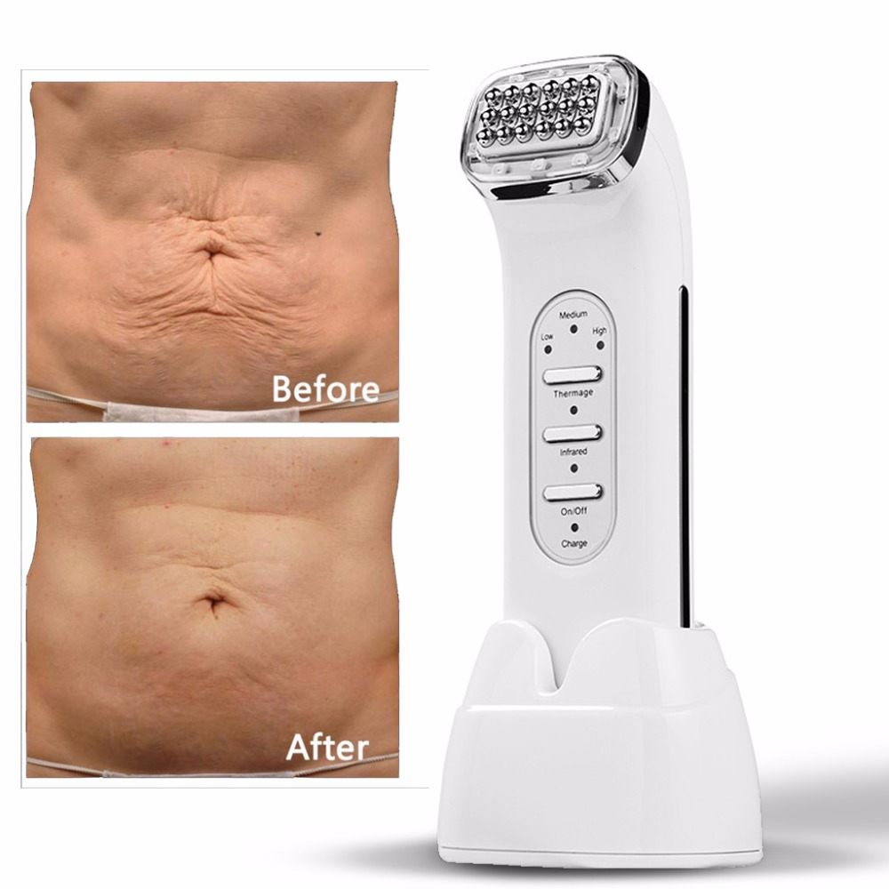 RF Wrinkle Removal Face Lifting Facial Thermage Radio Frequency Skin Tightening Fade dark circles & neckline Beauty care Machine цена 2017