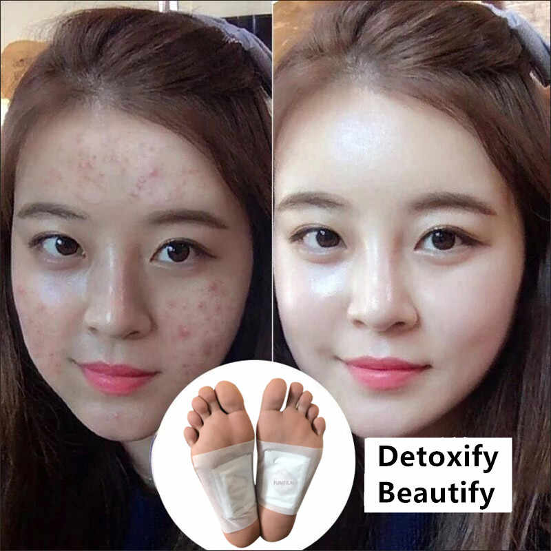 50pcs Lot Nature Detoxify Slimming Foot Patches Chinese Points Treatment Detox Bamboo Pads Exfoliating No Side Effect T0200spf Aliexpress