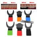 1 unid Dentista Endodoncia Ortodoncia Silicona Contraster Oral Tablón Fotografía 6 Tipos Para elegir