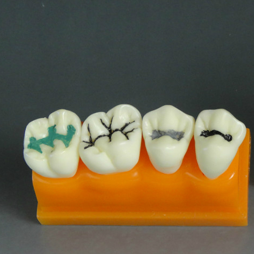2016 New Brand Dental Pit and fissure Sealing Treatment Teeth Tooth Study Learn Model High Quality Brand Design shaveta kaushal and atamjit singh pal dental implants and its design