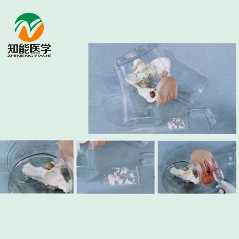 Bix-ft32 Médicos maniquí transparente anatomía vientre formación ...