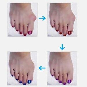 Vopregezi 2 шт. = 1 пара, корректор большого пальца ноги, коррекция вальгуса большого пальца, педикюрные инструменты, профессиональный ортопедический мат, уход за ногами