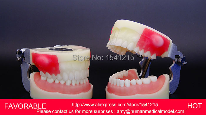 DENTAL CARIES MODEL,DENTAL DENTAL MODEL ,DENTAL CAST MODEL  DEPARTMENT OF DENTISTRY DISPLAY,MEDICAL ANATOMY MODEL-GASEN-DEN004 dental caries model dental dental model dental cast model for department of dentistry medical anatomy model gasen rzkq012