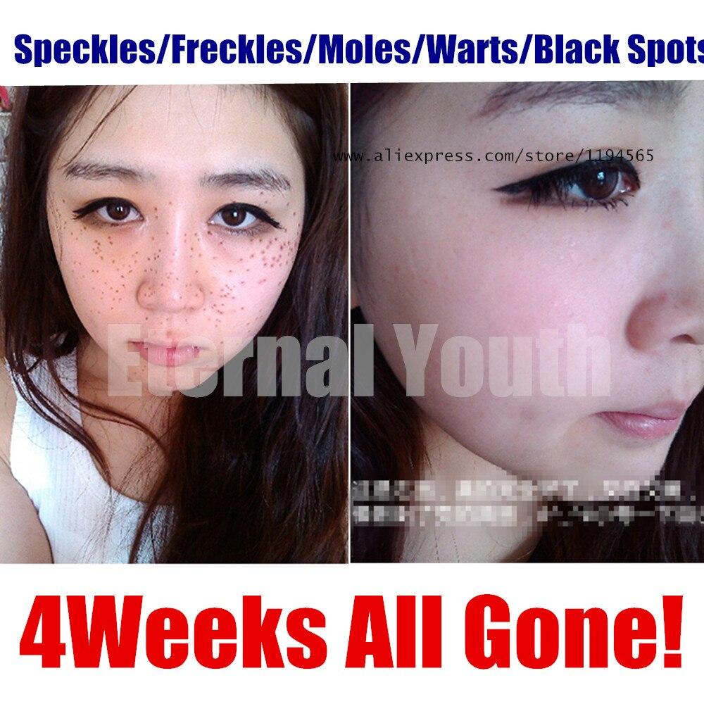 Speckles Moles Warts Removal Black Spots Splashes Remover Free Shipping Онихомикоз