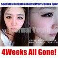Motas lunares verrugas plantares eliminación de puntos negros salpicaduras Remover envío gratis