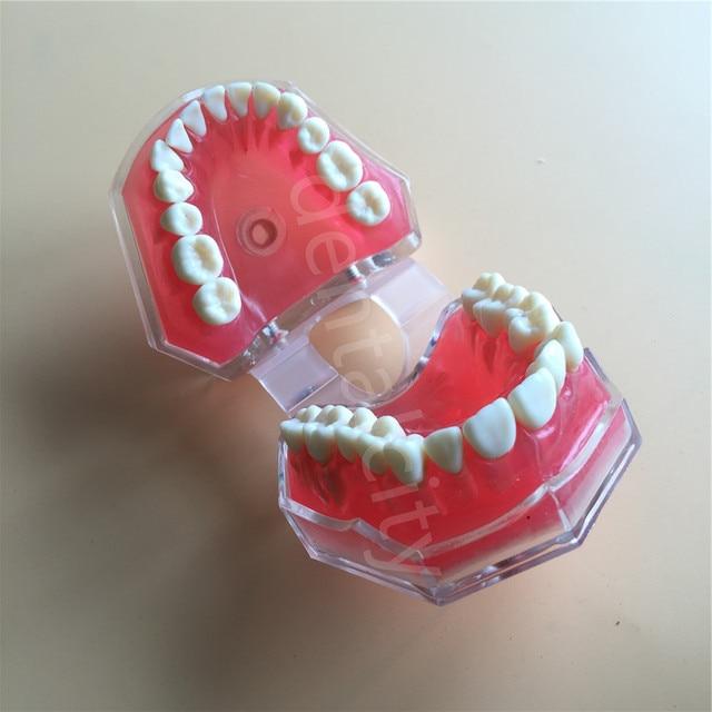 Dental modelo estándar con extraíble dientes Dental estudio enseñar los dientes modelo #4004 01