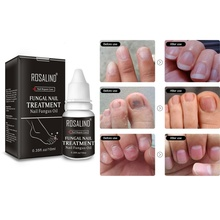 Губит 99.9% бактерий Уход за ногтями Лечение грибка масло онихомикоз параоникция противогрибковые инфекция ногтей 10 мл ремонт ногтей