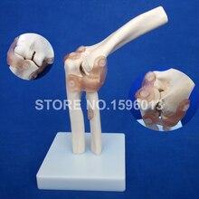 Горячая жизнь-размер локоть сустава модель, локоть кости с связкой анатомическая модель