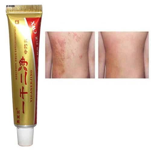 1Pc Chinese Unguentum Dry Skin Eczema Dermatitis Psoriasis Moisturize Herb Cream Beauty & Health Hot