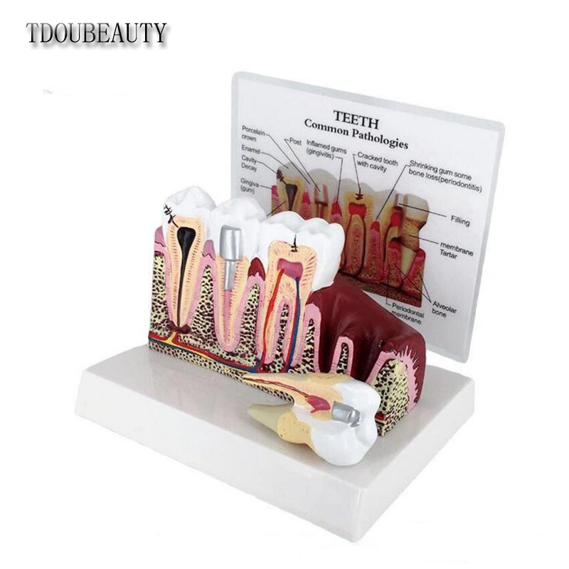 New Dental Pathology Teaching Model, Dental Calculus, Tooth Decay, Pathology, Gingival Inflammation, Planar Model.Free Shipping transparent dental pathology model dental care model