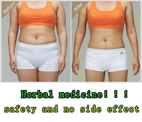 patches pastillas para adelgazar garcinia cambogia pills weight loss diet pills cream patch for slimming slime slim patch