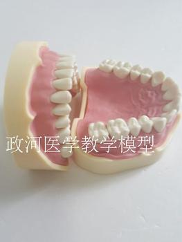 Dental model Gingival Oral Detachable Soft gum practice free shipping