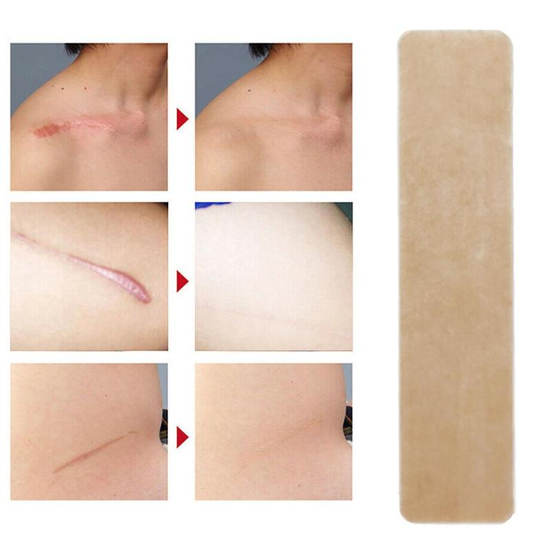 Silicone Gel Sheet Wound Marks Removal Cesarean Medical Scar Away Patch Section Hypertrophic Keloid Skin Scars Therapy Treatment