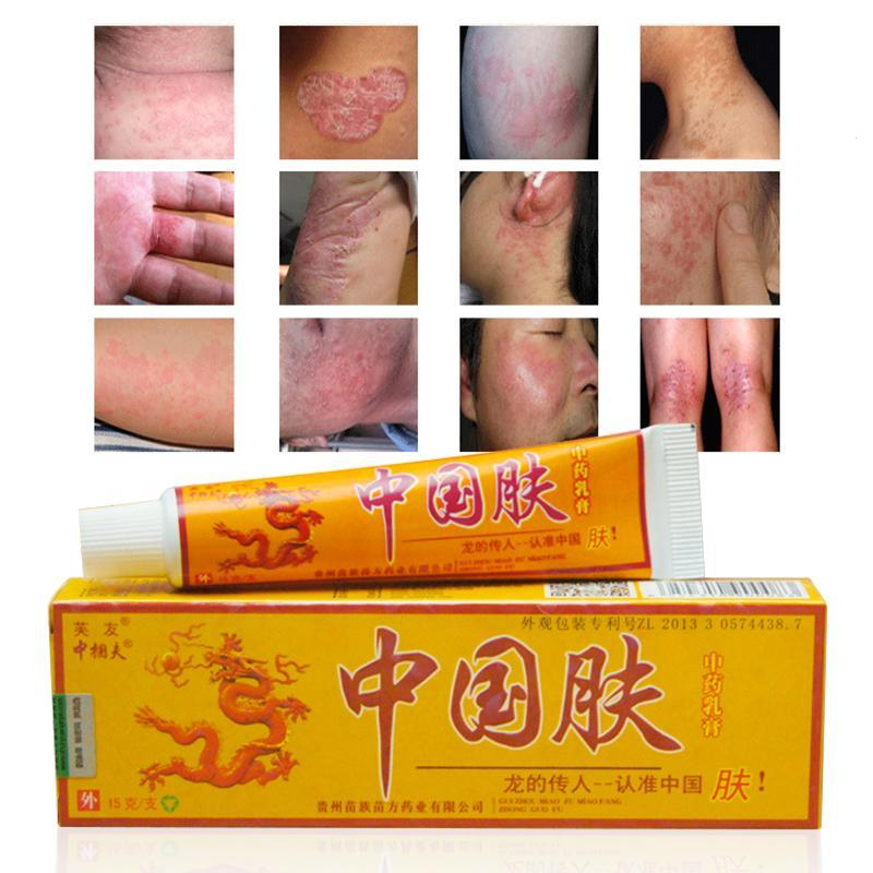 15g Natural Chinese Medicine Herbal Anti Bacteria Cream Psoriasis Eczema Ointment Skin Problem Repair Treatment Health Care image