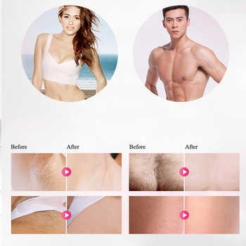 laser hair removal replacement head