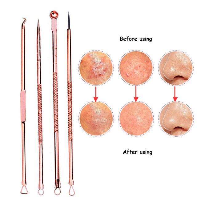 acne needle black