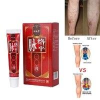 Varicose Veins Treatment Cream Ointment Vasculitis Phlebitis Spider Veins Pain Varicosity Angiitis Remedy Removal Herbal Cream Health & Beauty