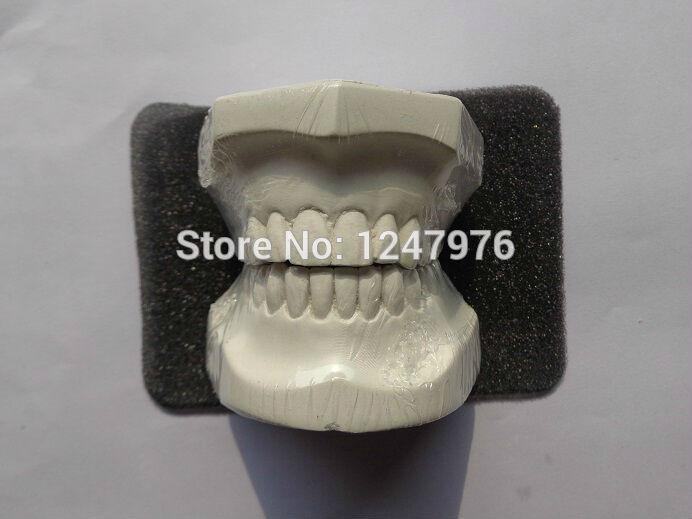 Dental gypsum plaster casts of teeth, dental wax model