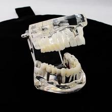 New Arrival Dental Implant Disease Teeth Model Tooth For Medical Science Dental Disease Teaching Study