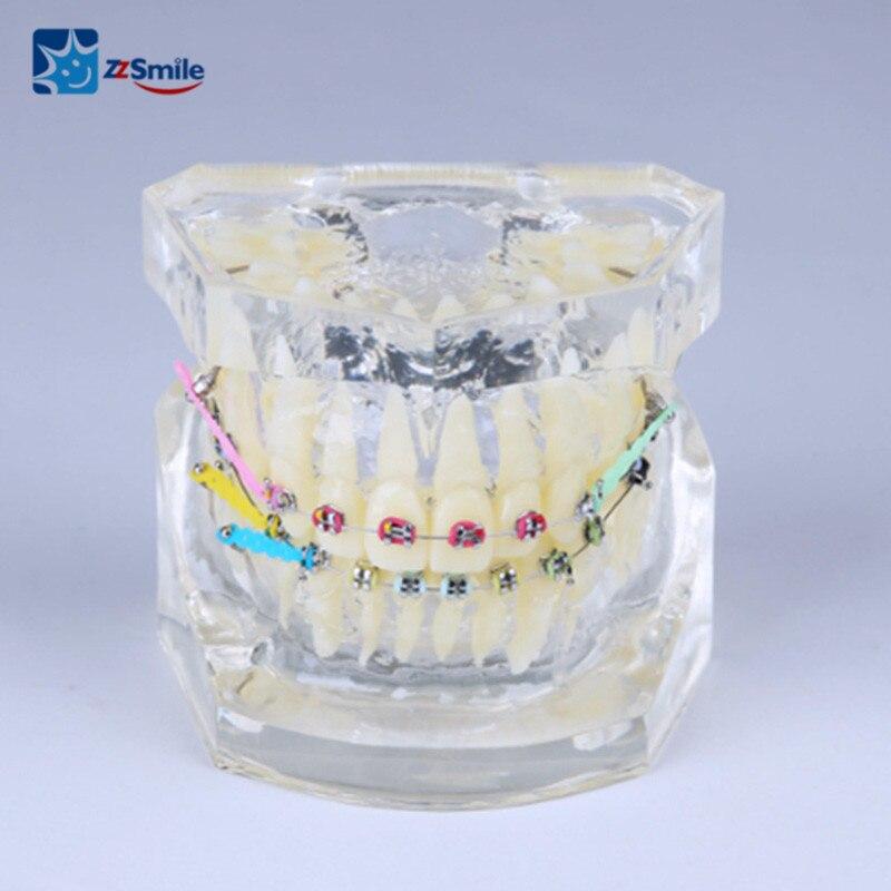 Стоматологическое Ортодонтическое лечение демонстрация M3005 2 прозрачная модель с лигатурной проволокой