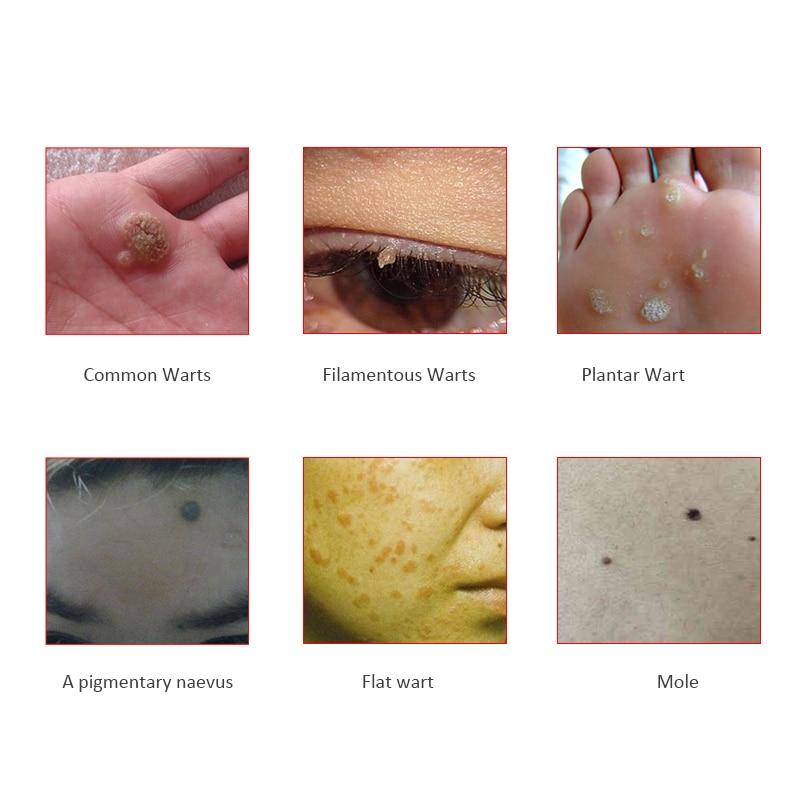 1 Pack Combined Therapy Genital Warts Hpv U Kill Flat Warts Herpes Genital Warts Mole Pigmentary Naevus Filamentous Wart Removal Genital Wart Removal Genital Herpesherpes Warts Aliexpress