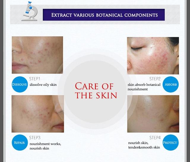 BIOAQUA 30g Treatment Remove Anti Acne Facial Cream Shrink Pores Oil Control Moisturizing Men/Women Face Skin Care 3