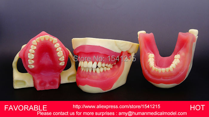 DENTAL CARIES MODEL,DENTAL DENTAL MODEL ,DENTAL CAST MODEL FOR DEPARTMENT  DENTISTRY DISPLAY,MEDICAL ANATOMY MODEL-GASEN-DEN007 dental pathology model anatomical model teeth model dental caries periodontal disease demonstration model gasen den050