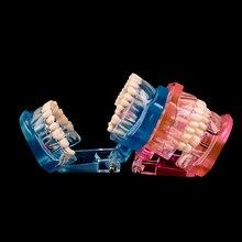 Modelo dental quente dos dentes da doença do implante com ponte da restauração dentista do dente para a ciência médica estudo de ensino da doença dental