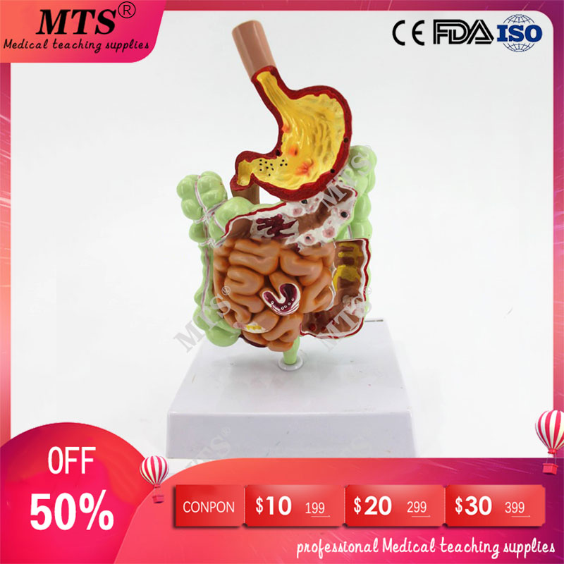 Human Gastrointestinal Pathology Anatomy Model Digestive Tract Gastric Coronal Section Transverse Colon Model Medical Teaching
