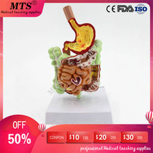 Human Gastrointestinal Pathology Anatomy Model Digestive Tract Gastric Coronal Section Transverse Colon Model medical teaching figado liver pancreatic cystic structure model medical anatomical digestive stomach hepatobiliary gastrointestinal gasen xh003