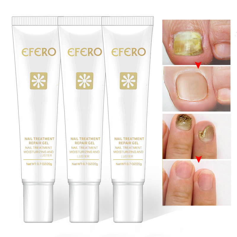 Efero Feet-Care Nail-Treatment Nails Removal-Gel Repair-Essence Anti-Infection Fungal