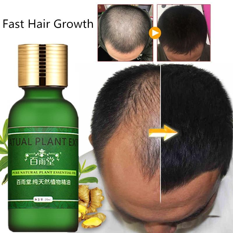 Andrea Hair Growth Ginger Oil Natural Plant Essence Faster Grow Beard Eyelashes Hair Tonic Shampoo Hair Loss Hair Care Serum 4
