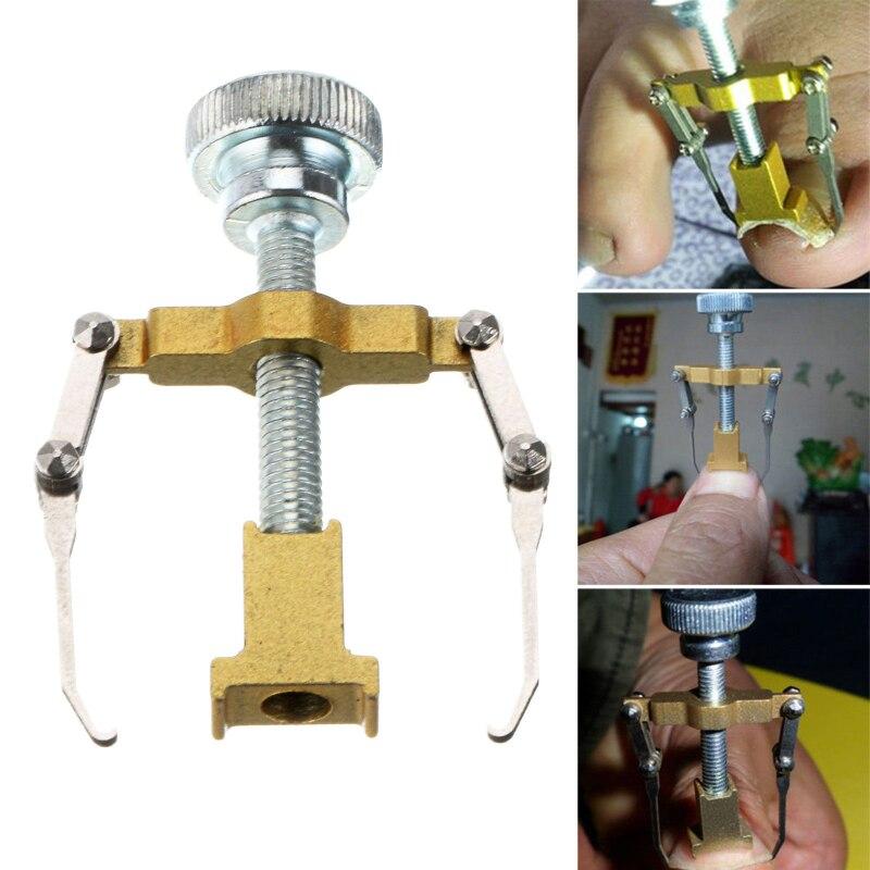Ingrown Toe Nail Correction Tool Fixer Recover Toe Paronychia Nail Brace Tools Ingrown Toenails Nail Corrector Pedicure Tool