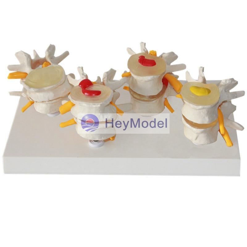 HeyModel Four-stage lumbar spine model Bone spurs Lumbar pathological model Intervertebral disc herniation medical teaching model anatomy biological4 stage model of lumbar intervertebral disc herniation model of lumbar spine model