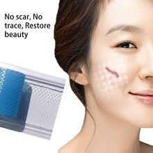 Хирургический силиконовый гель для удаления шрамов, терапевтический пластырь для лечения акне, травм, ожогов, шрамов, восстановления кожи, пластырь
