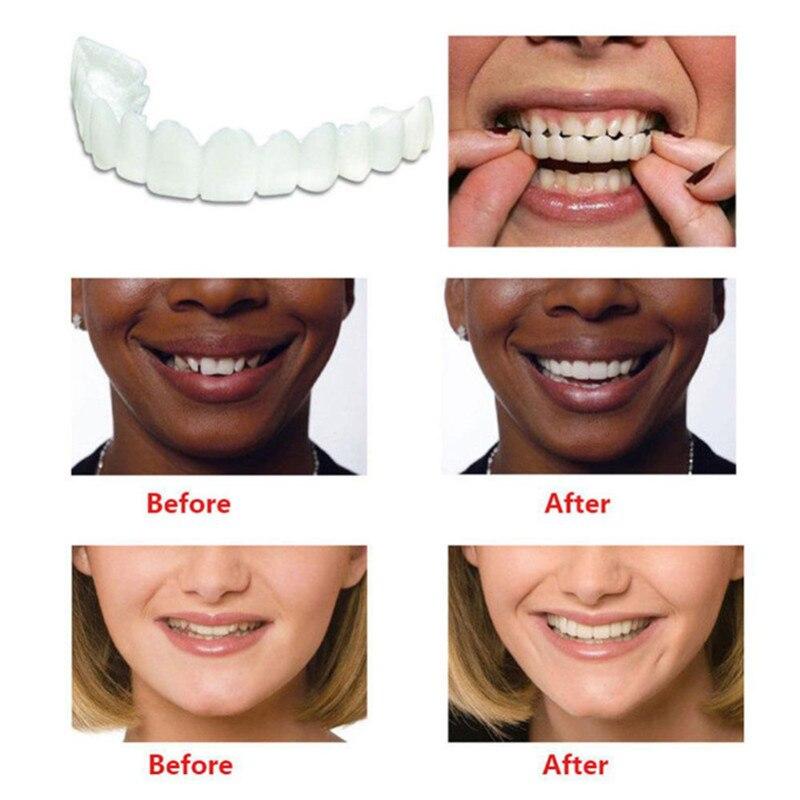 Whitening Snap On Smile Perfect Smile Fits Most Comfortable Denture Care False Dental Teeth Veneers Upper Teeth & Lower Teeth