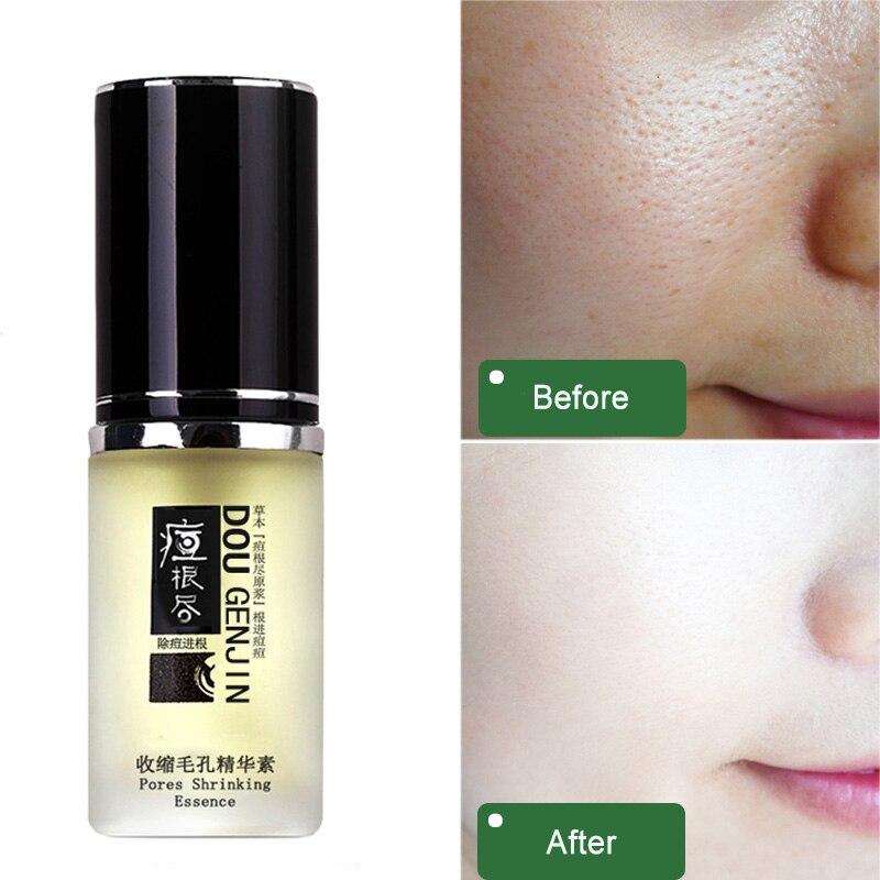 Pore Refining Essence Gel rejuvenation facial facial serum retinol hyaluronic acid expanded pores minimizer repair of the skin