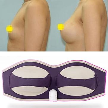 DHL free shipping Most Effective Breast Enhancer Enlargement Massager One Size Fit Most Effective Body Massager 220V